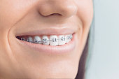 Young woman with brackets