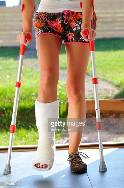 Woman with broken leg, twisted ankle, bandage, walking on crutches