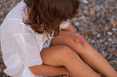 Woman with bruise on her knee