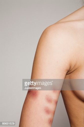 Woman with bruises on arm