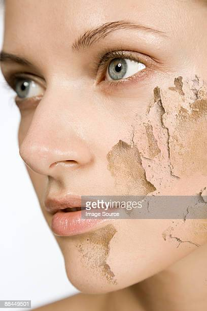 Woman with cracked and peeling skin