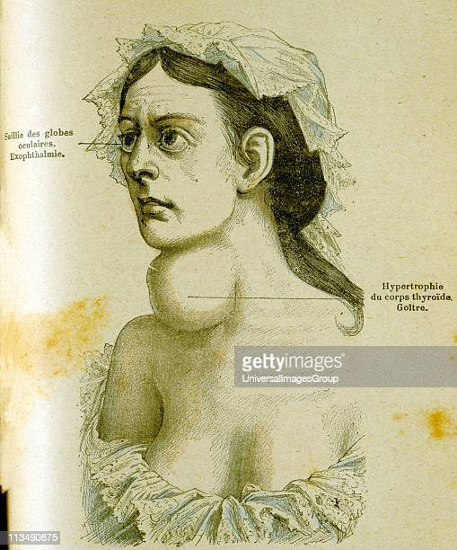 Woman with goitre and enlargement of the thyroid gland caused by lack of iodine From Jules Rengade Les Grands Maux et les Grands Remedes Paris c1890