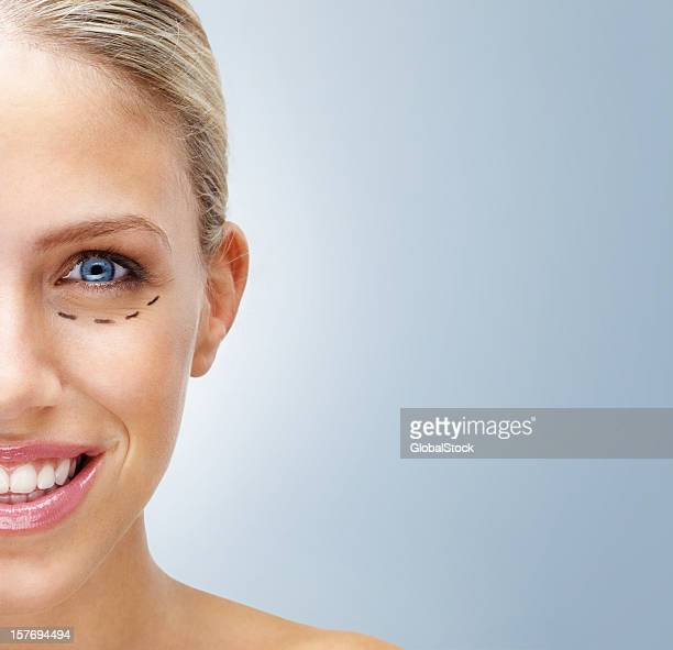 Woman with markings on face before plastic surgery - copyspace