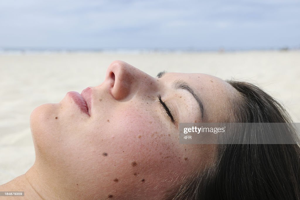Woman with Melanoma Moles and Freckles sunbathing (XXXL)