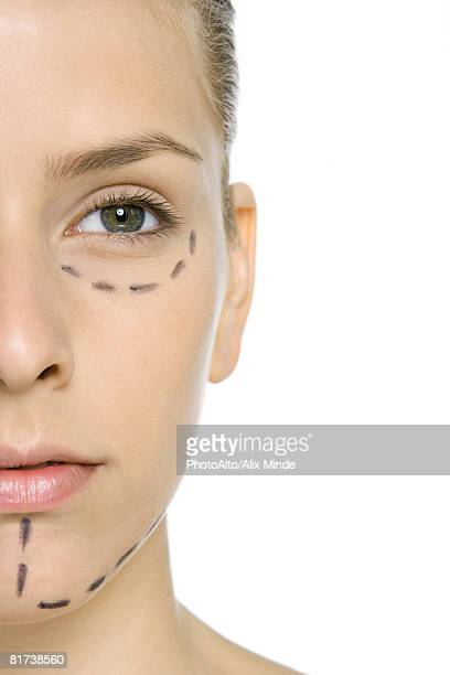 Woman with plastic surgery markings on face, close-up, cropped view