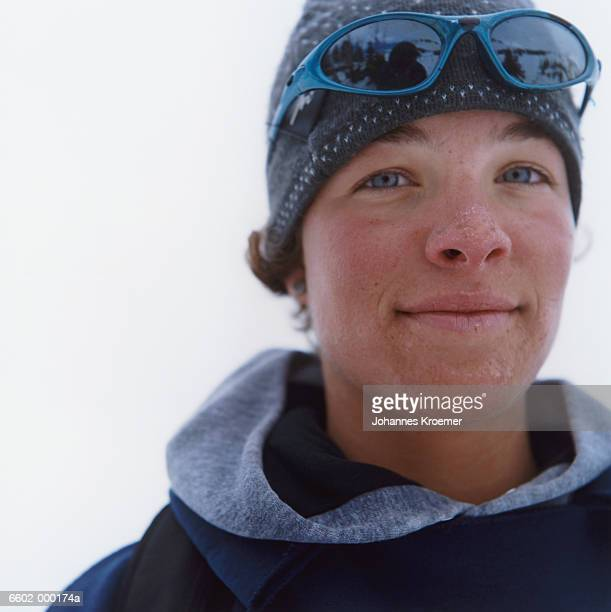 Woman with Sunburnt Face