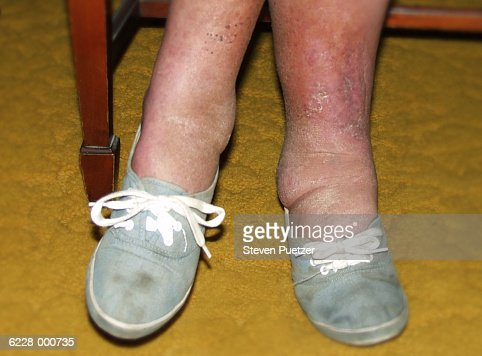 Woman with Swollen Ankles