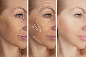 woman wrinkles before and after procedures, arrow