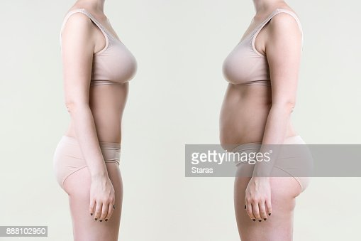 Woman's body before and after weight loss : Stock Photo