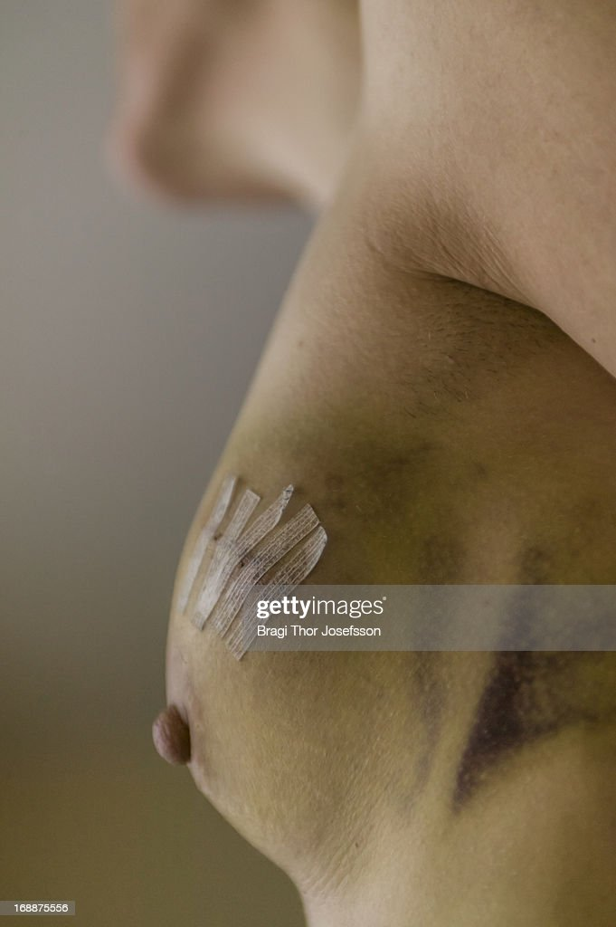 Womans breast : Stock Photo