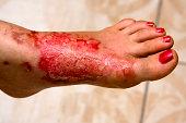 Severe burns in the women's leg .