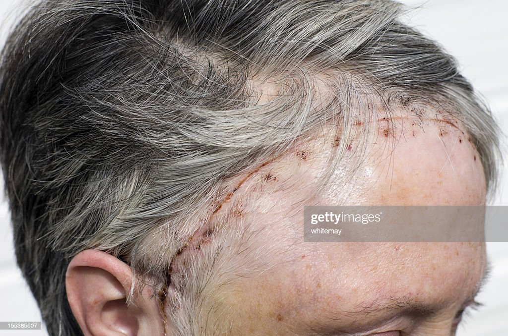 Woman's head 12 days after brain tumour surgery