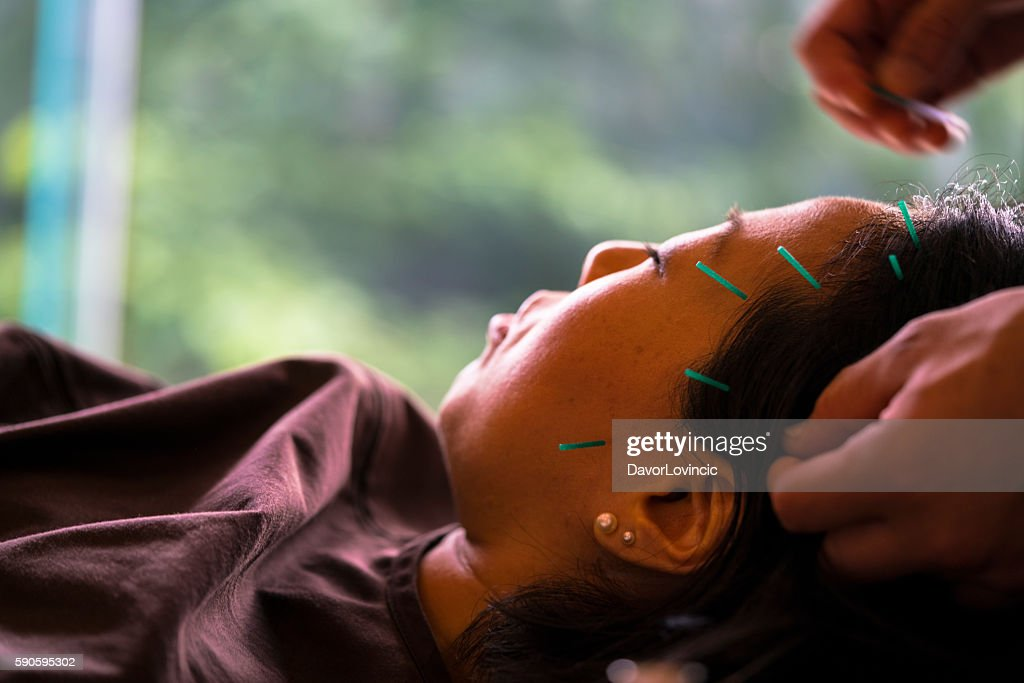 Womans head acupuncture treatment in Kyoto, Japan