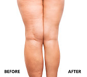 Woman's legs before and after weight loss