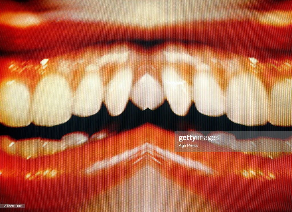 Woman's mouth with teeth exposed, (montage, video still) : Stock Photo