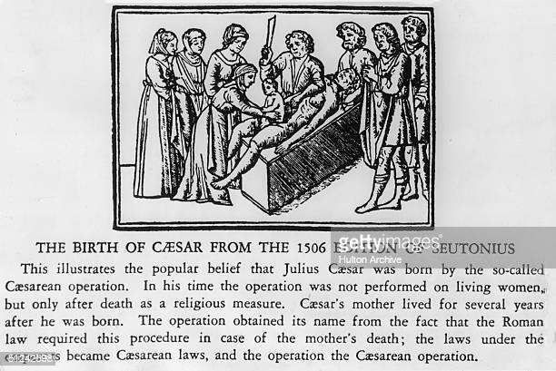 100 BC A woodcut depiction of the first Caesarean operation carried out at the birth of Julius Caesar as featured in the 1506 edition of Suetonius'...