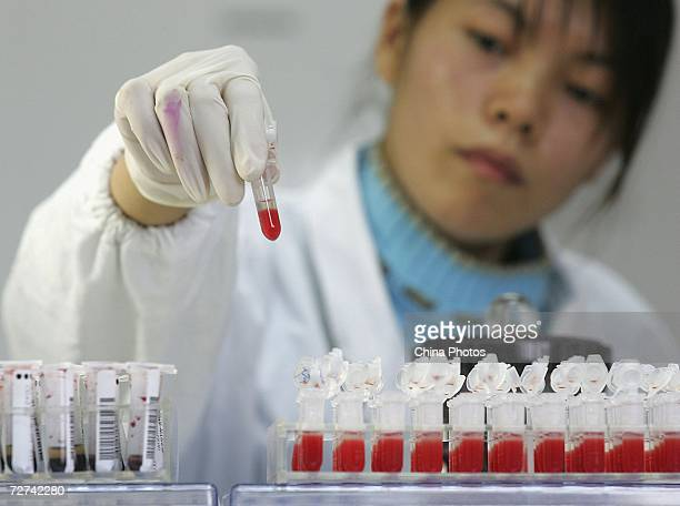 A worker performs a CD4 HIV test at a lab of Shanghai Xuhui District Central Hospital on December 6 2006 in Shanghai China Shanghai's medical...