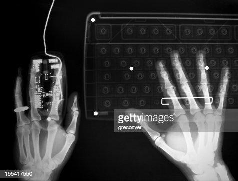 Trabalhar no computador raios x
