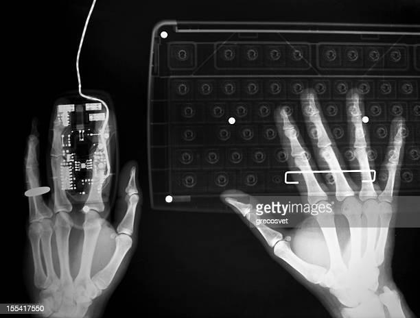 Lavorando sul computer Radiografia