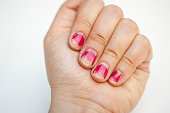 Female fingers with with chapped nail polish