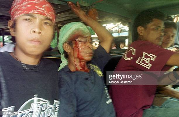 Wounded Abu Sayyaf kidnappers are rushed to a hospital following a fire fight with a rival Muslim rebel group who ambushed negotiators believed to be...