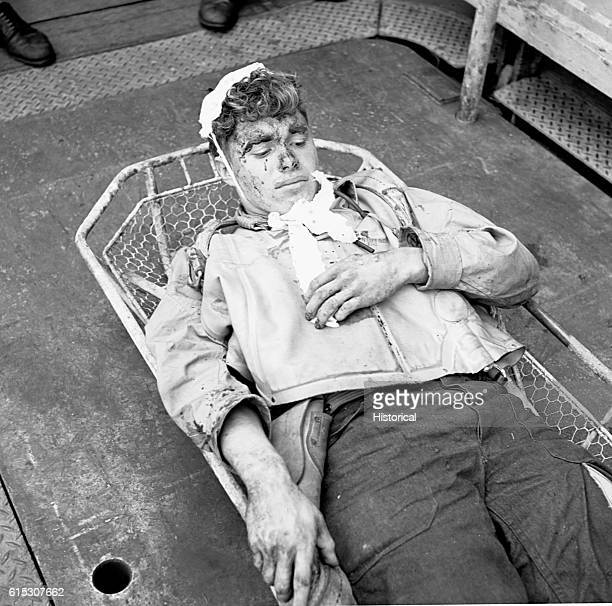A wounded aircrewman rests in a litter aboard the USS Saratoga after a strike against Rabaul November 5 1943