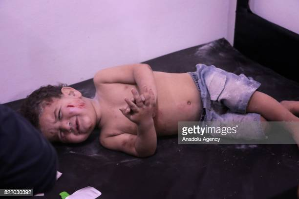 Wounded child cries as he waits to receive treatment at a sahra hospital after Assad Regime's forces carried out airstrike over the deconflict zone...