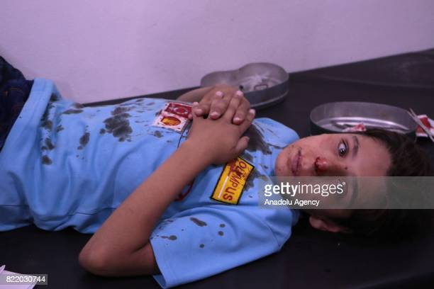 Wounded child lies on a stretcher as he waits to receive treatment at a sahra hospital after Assad Regime's forces carried out airstrike over the...