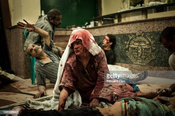 AUGUST 21 Wounded civilians in a field hospital after an air strike destroyed a bakery killing 20 and injuring 80 on August 21 2012 in Aleppo Syria...