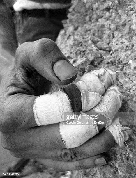 Wounded Fingers Of Man Climbing Rock