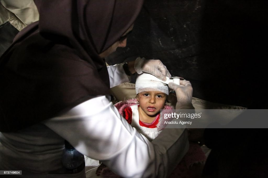 A wounded girl receives treatment at Sahra hospital in Sarpol-e Zahab province of Kermanshah, Iran on November 13, 2017 following a 7.3 magnitude earthquake that hit the Iraq and Iran. An earthquake measuring 7.3 on the Richter scale rocked northern Iraq and Iran, the U.S. Geological Survey said on Sunday evening. At least 407 died and 6,700 others were injured in Iran's bordering regions, especially in Kermanshah province in west.