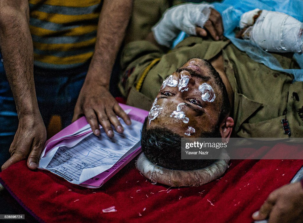 A wounded Indian policeman lies on a gurney inside a hospital after a grenade attack by suspected militants on May 06, 2016 in Srinagar, the summer capital of Indian administered Kashmir, India. Three Indian policemen and a woman were wounded when suspected militants lobbed a hand grenade on an Indian police patrolling party in Chadoora town of central Kashmir��s Budgom district.