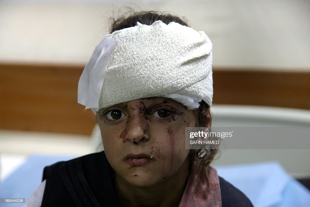 A wounded Iraqi girl with her head bandaged sits on a hospital trolley after receiving medical care at a hospital in the northern Iraqi city of Dohuk on October 6, 2013. Bombers detonated explosives-rigged vehicles at a police station and a primary school, killing 15 people and wounding 44, local official Abdulal Abbas told AFP. The dead were five police and 10 children, Abbas said, adding that the bombing at the school collapsed the roof of the building.
