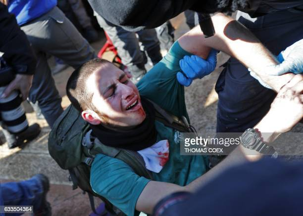 TOPSHOT A wounded Israeli settler reacts as Israeli police mobilise on the second day of an operation to evict the hardline occupants and their...