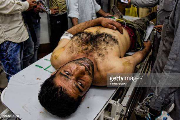 A wounded Kashmiri Muslim man waits for treatment inside a hospital after a grenade attack in a busy market which killed three civilians on September...