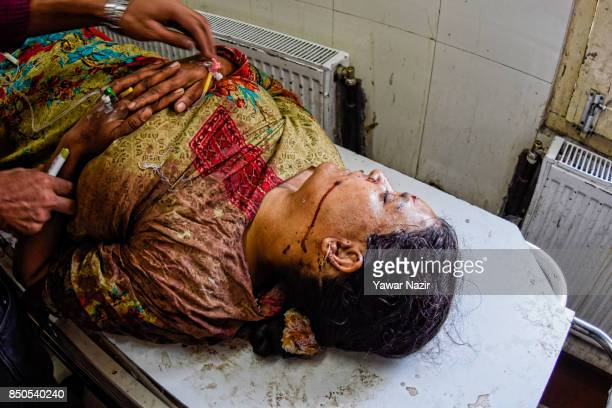 Wounded Kashmiri woman waits for treatment inside a hospital after a grenade attack in a busy market which killed three civilians on September 21 in...