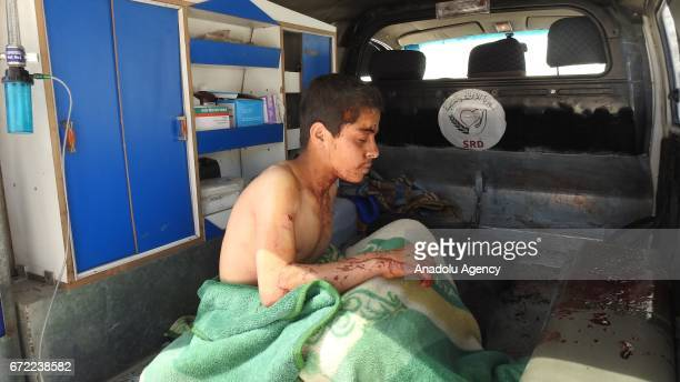 A wounded kid waits to be taken to sahra hospital after the war crafts belonging to the Assad regime forces carried out airstrikes on the Khan...