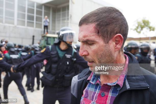 A wounded man looks on in front of Civil Guard officers outside a polling station used for the banned referendum in Sant Julia de Ramis Spain on...