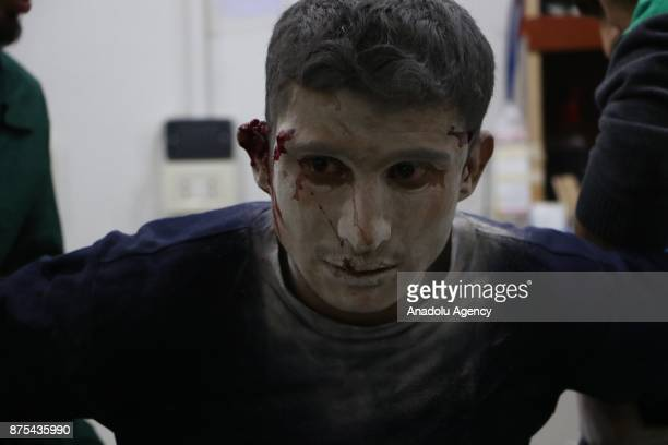 A wounded man receives a medical treatment after Assad regime's war crafts carry out intensifying airstrikes over residential areas of Arbin town of...