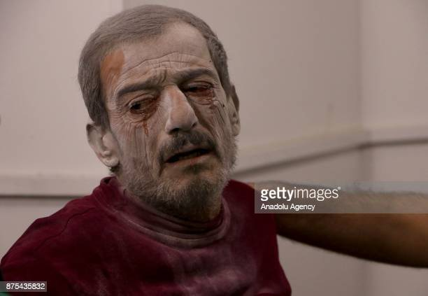 A wounded man waits to receive medical treatment after Assad regime's war crafts carry out intensifying airstrikes over residential areas of Arbin...