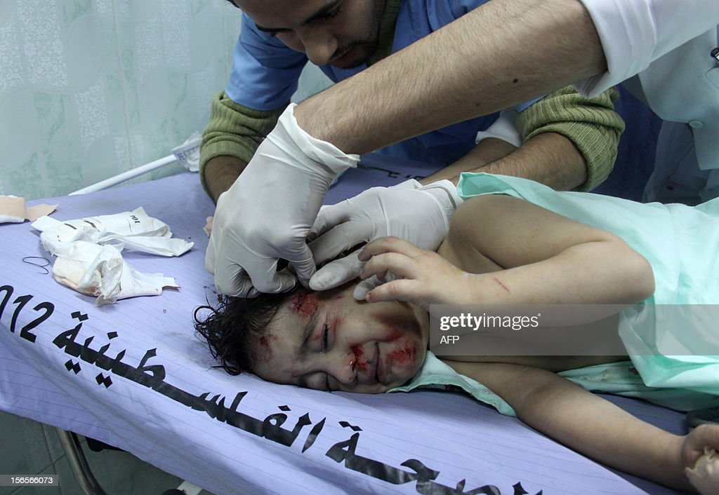 A wounded Palestinian child receives treatment at a hospital following an Israeli air raid in Beit Lahia, northern Gaza Strip, on November 17, 2012. Israeli air strikes hit the cabinet headquarters of Gaza's Hamas government, after militants fired rockets at Jerusalem and Tel Aviv as Israel called up thousands more reservists in readiness for a potential ground war.