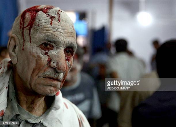 Wounded people arrive at a makeshift hospital in the rebelheld area of Douma east of the Syrian capital Damascus following reported air strikes by...
