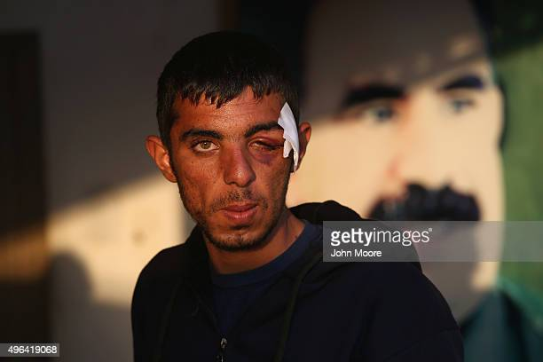 Wounded soldier Chiya Kosar a member of the Peoples Protection Units recovers at a center for injured troops on November 9 2015 in Hassika Rojava...