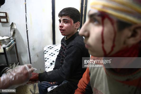 TOPSHOT A wounded Syrian boy cries as he receives treatment at a makeshift hospital following reported government airstrike on the rebelheld town of...
