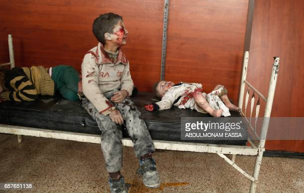 TOPSHOT Wounded Syrian children cry as they wait to receive treatment following a reported air strike on the rebelcontrolled town of Hammuriyeh in...