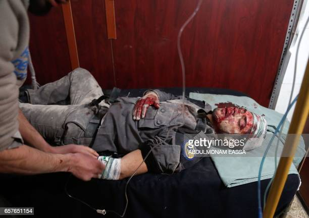 TOPSHOT A wounded Syrian civil defence volunteer also known as the White Helmets receives treatment following a reported air strike on the...