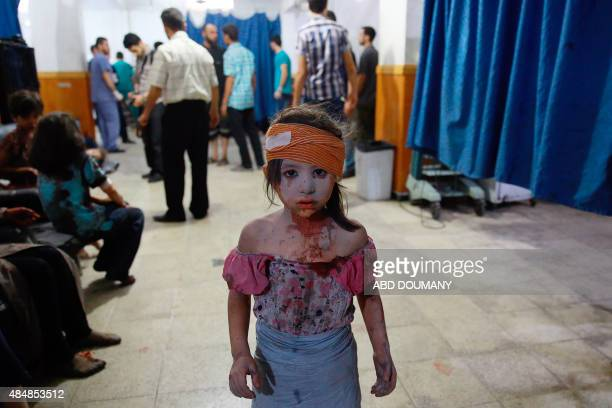 A wounded Syrian girl looks on at a make shift hospital in the rebelheld area of Douma east of the capital Damascus following shelling and air raids...