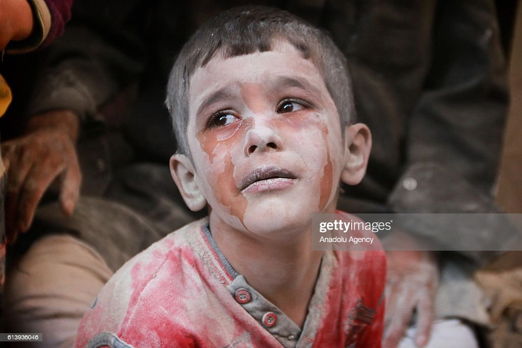 A wounded Syrian kid cries after the war-crafts belonging to the Russian army bombed the opposition controlled Firdevs neighborhood in Aleppo, Syria on October 11, 2016.
