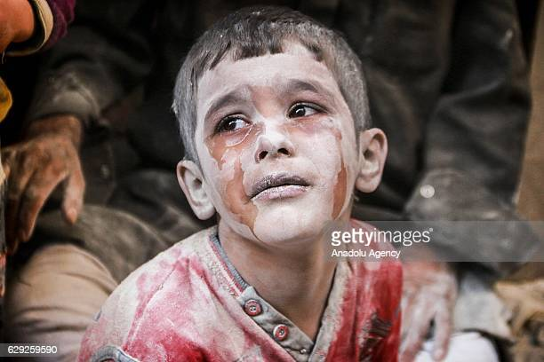 A wounded Syrian kid cries after the warcrafts belonging to the Russian army bombed the opposition controlled Firdevs neighborhood in Aleppo Syria on...