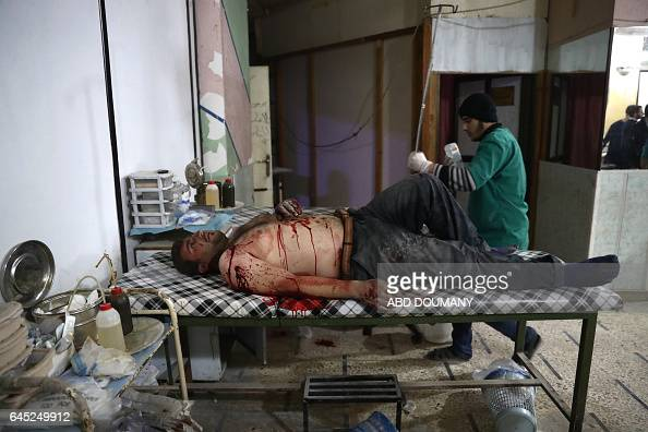 TOPSHOT A wounded Syrian man awaits to receive treatment at a makeshift hospital following reported government airstrike on the rebelheld town of...
